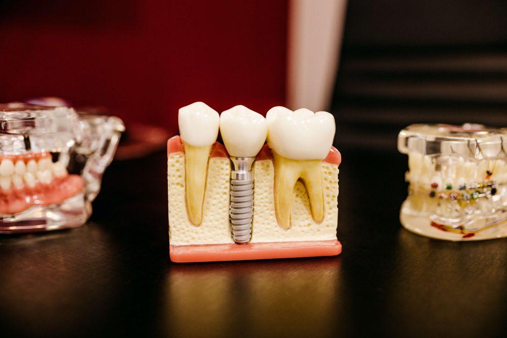 Kto wymyślił implanty stomatologiczne?